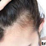 8 Cara Menghilangkan Kutu Rambut Secara Cepat dan Alami